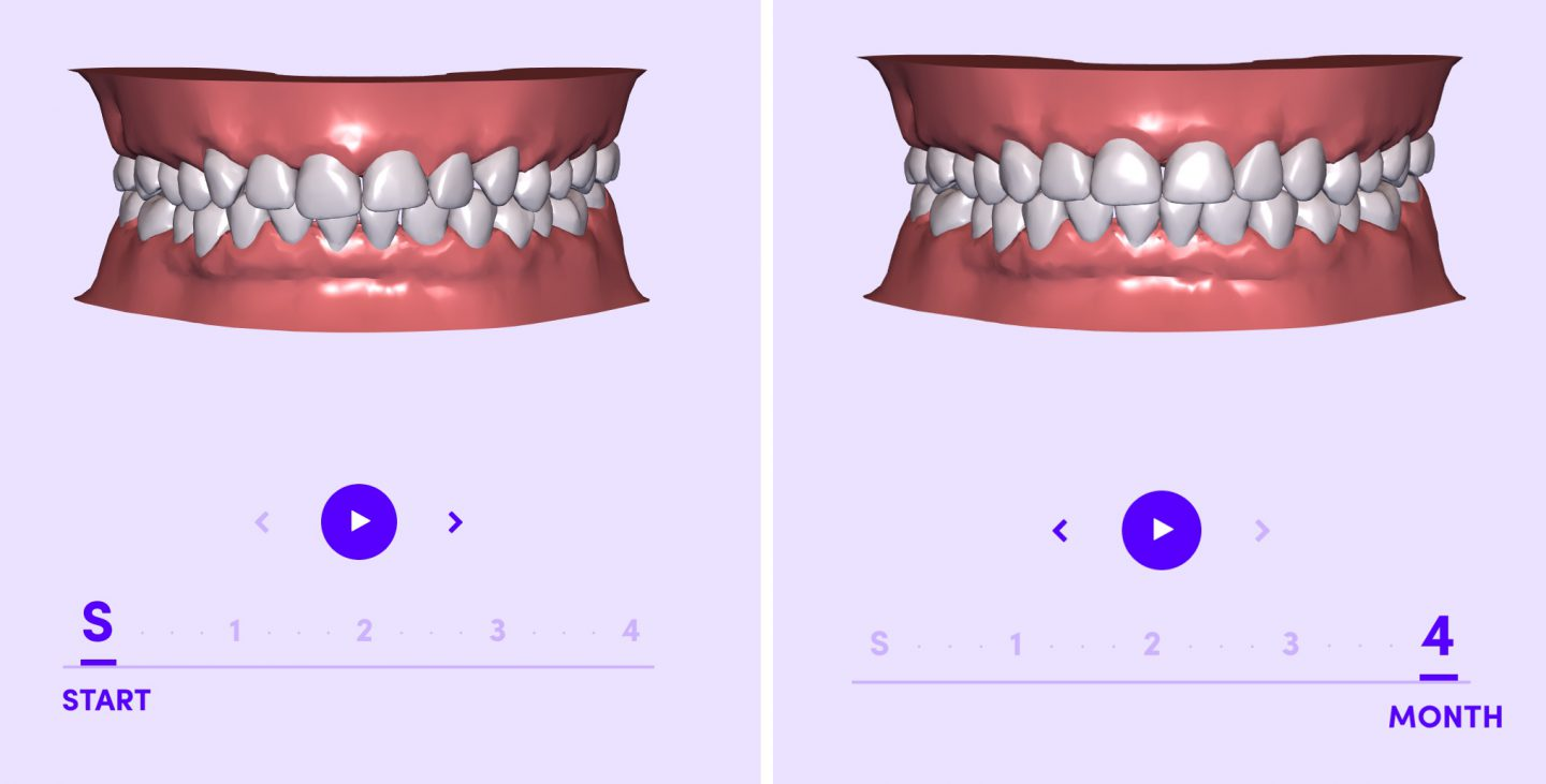 Invisible Braces: the new solution by Smile Direct Club you need to know about 2